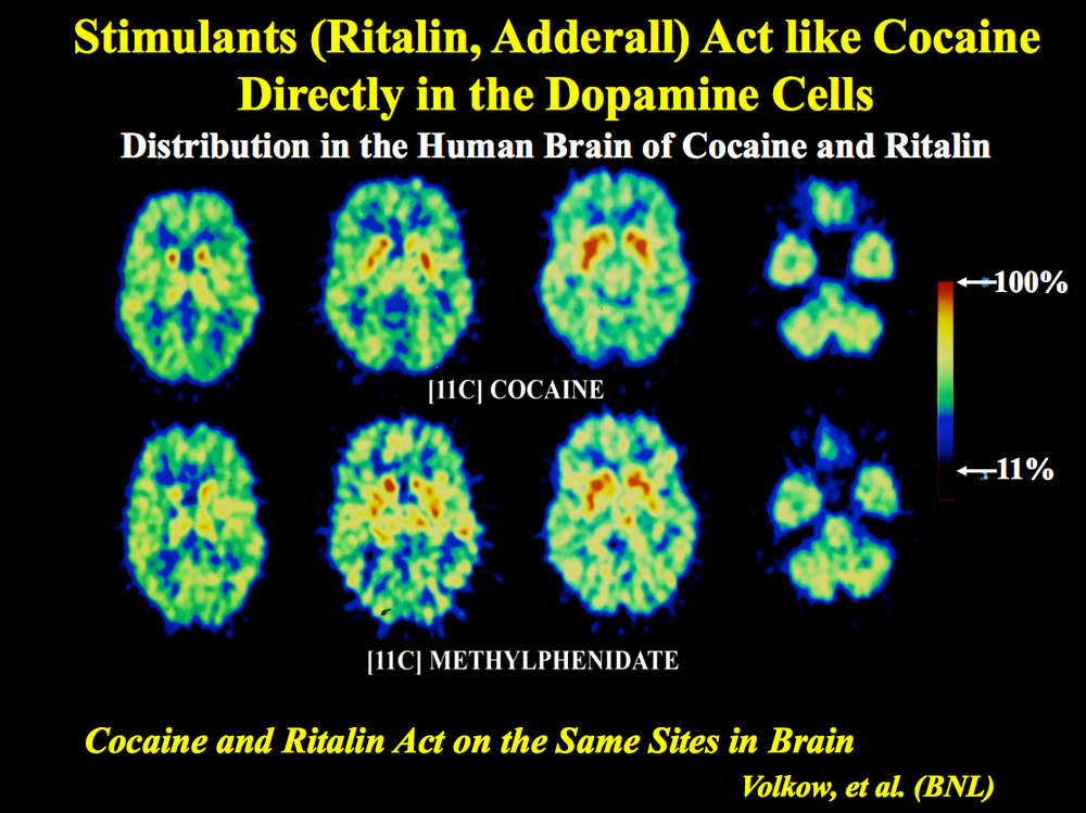 how stimulants act in the dopamine cells